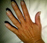 Hand Rejuvenation before 1135345