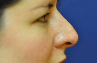 Non-Surgical Rhinoplasty after 513480