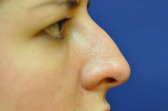 Non-Surgical Rhinoplasty before 513480