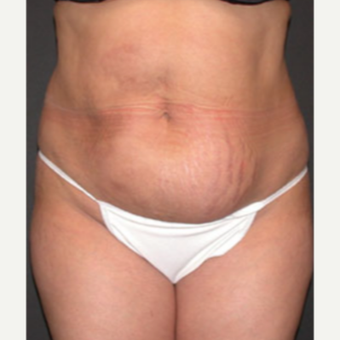 Tummy Tuck before 1688398