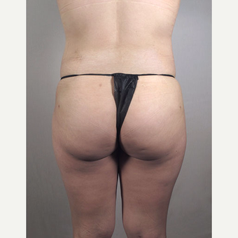 25-34 year old woman treated with Brazilian Butt Lift after 3213453