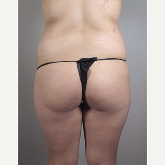 25-34 year old woman treated with Brazilian Butt Lift before 3213453
