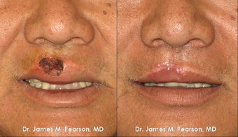 Lip Reconstruction before 919850