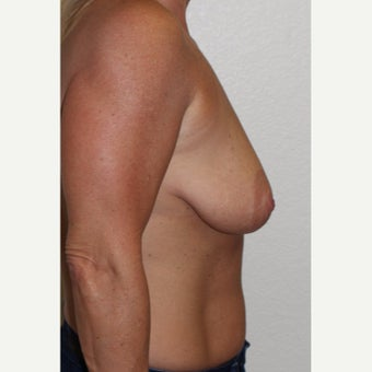 45-54 year old woman treated with Breast Implants before 1977228