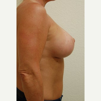 45-54 year old woman treated with Breast Implants after 1977228