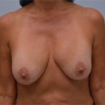 45-54 year old woman treated with Breast Implant Removal before 2141624