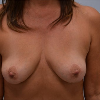 45-54 year old woman treated with Breast Implant Removal after 2141624