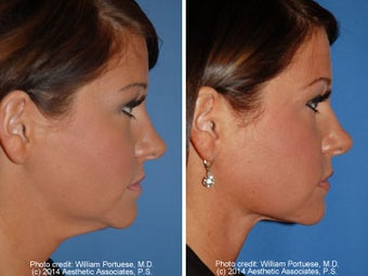 Neck Liposuction before 1389504
