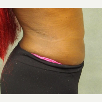 25-34 year old woman treated with Liposuction after 3087405