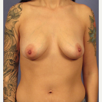 25-34 year old woman treated with Breast Augmentation before 3095762