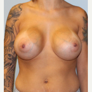 25-34 year old woman treated with Breast Augmentation after 3095762