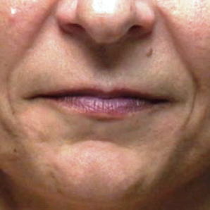 35-44 year old woman treated with Lip Augmentation before 3202123