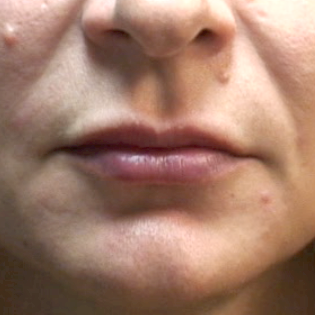 35-44 year old woman treated with Lip Augmentation after 3202123