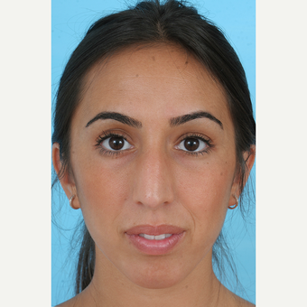 25-34 year old woman treated with Rhinoplasty before 3691138