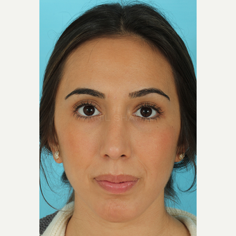 25-34 year old woman treated with Rhinoplasty after 3691138