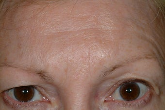 Brow asymmetry before 89239
