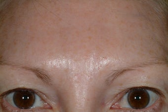 Brow asymmetry after 89239