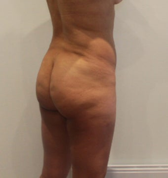 35-44 year old woman treated with Brazilian Butt Lift before 3338498