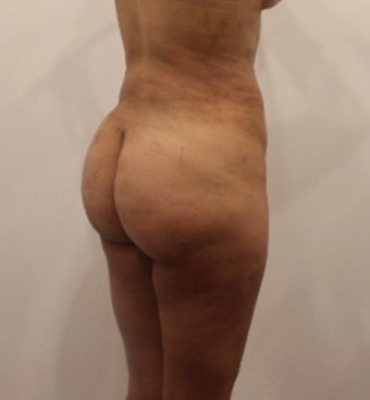35-44 year old woman treated with Brazilian Butt Lift after 3338498