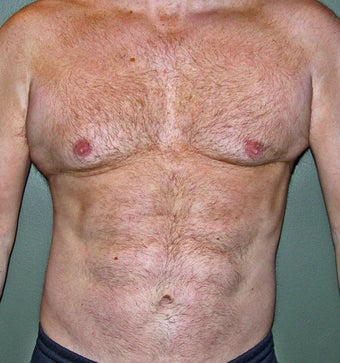 45 Year Old Male Who Desired 6-Pak Abs