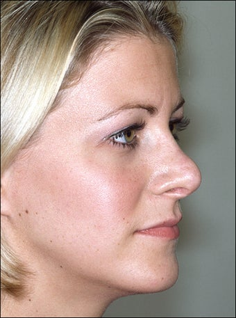 Revision rhinoplasty before 951567