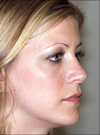 Revision rhinoplasty after 951567