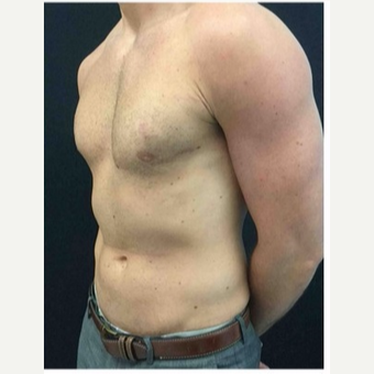 25-34 year old man treated with Male Breast Reduction after 3185984