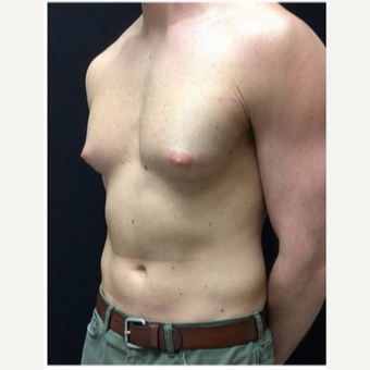 25-34 year old man treated with Male Breast Reduction before 3185984