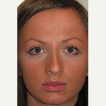 25-34 year old woman treated with Rhinoplasty before 3499837