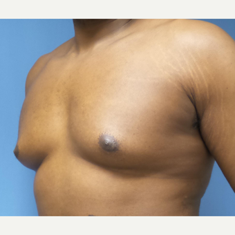 35-44 year old man treated with Male Breast Reduction before 3678073