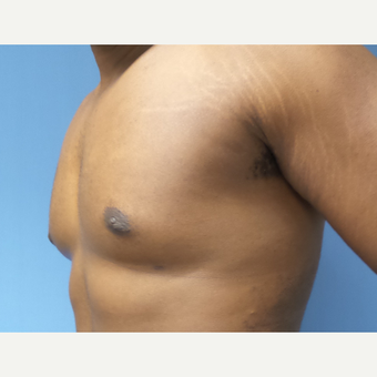 35-44 year old man treated with Male Breast Reduction after 3678073