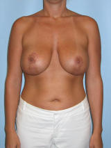 Breast Lift Surgery with Implants after 131948