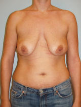 Breast Lift Surgery with Implants before 131948