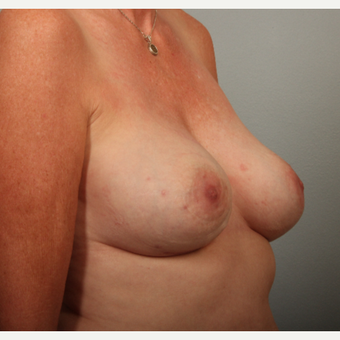 54 year old; ruptured gel implants. These were replaced with smaller implants, plus scarless lift. after 3419486