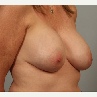 54 year old; ruptured gel implants. These were replaced with smaller implants, plus scarless lift. before 3419486
