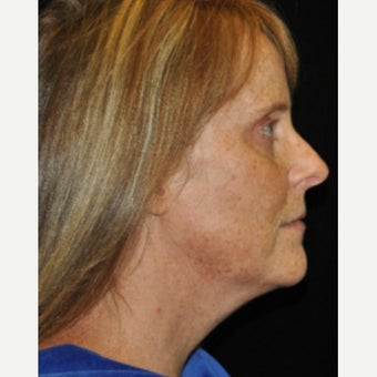 45-54 year old woman treated with Photofacial before 2486927