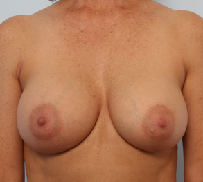 Breast Augmentation after 920106