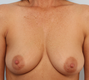 Breast Augmentation before 920106
