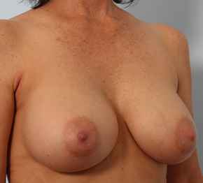 Breast Augmentation 920106