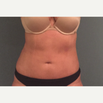 18-24 year old woman treated with Tumescent Liposuction after 3747560