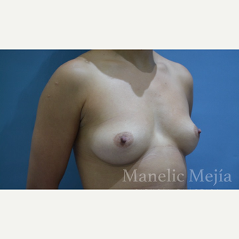 25-34 year old woman treated with Breast Augmentation before 3647394