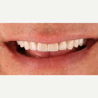55-64 year old man treated with Porcelain Veneers after 3211796