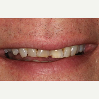 55-64 year old man treated with Porcelain Veneers before 3211796