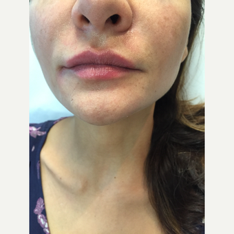 25-34 year old woman treated with Lip Augmentation after 3589947