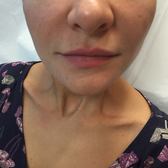25-34 year old woman treated with Lip Augmentation before 3589947