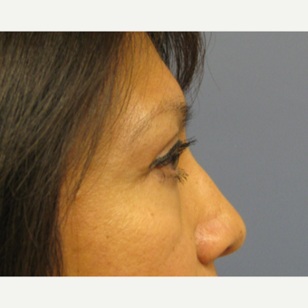45-54 year old woman treated with Eyelid Surgery after 3651933