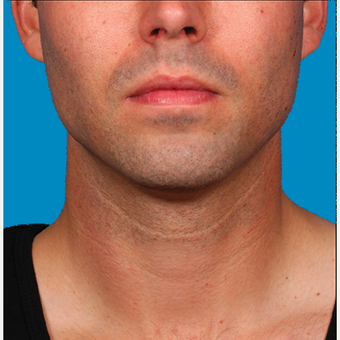 "25-34 year old man treated with Kybella for corruption of sub mental fullness /""double chin"" after 2335015"