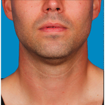 "25-34 year old man treated with Kybella for corruption of sub mental fullness /""double chin"" before 2335015"