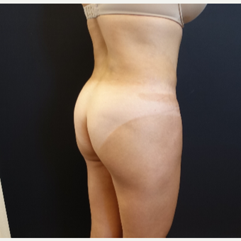 35-44 year old woman treated with Butt Augmentation before 3234500