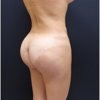 35-44 year old woman treated with Butt Augmentation after 3234500